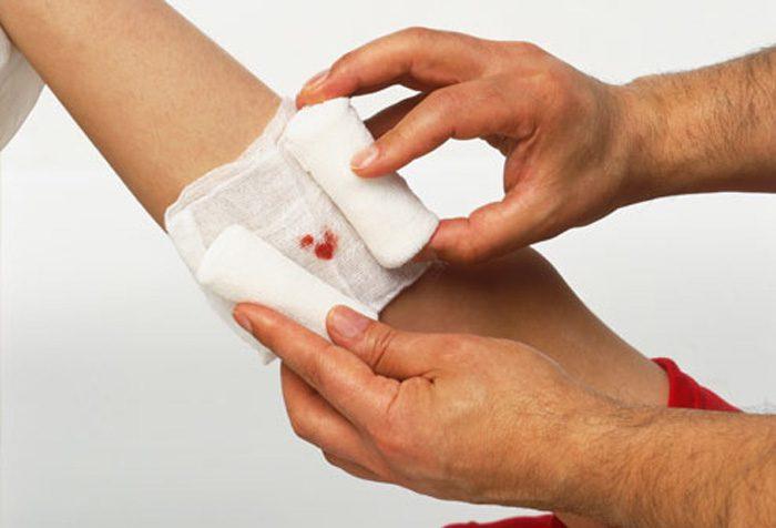 درمان زخم حاد