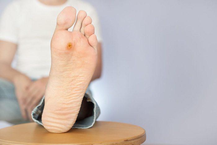 درمان زخم دیابتی