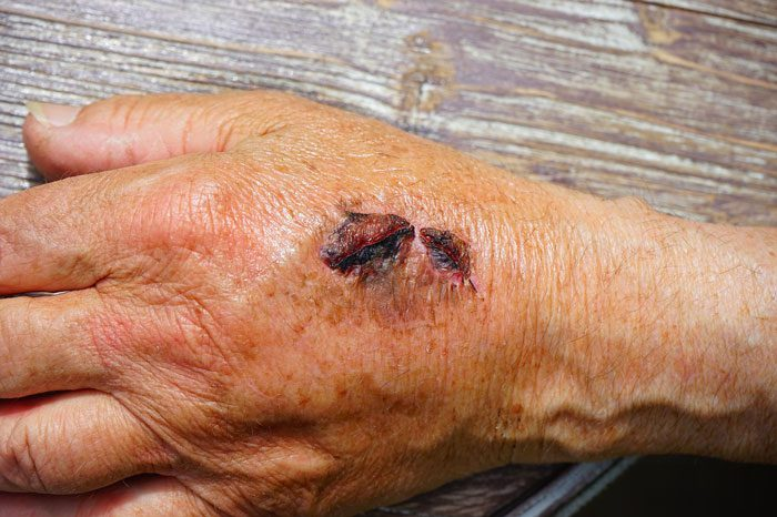 درمان خانگی و سریع عفونت زخم ها چیست؟