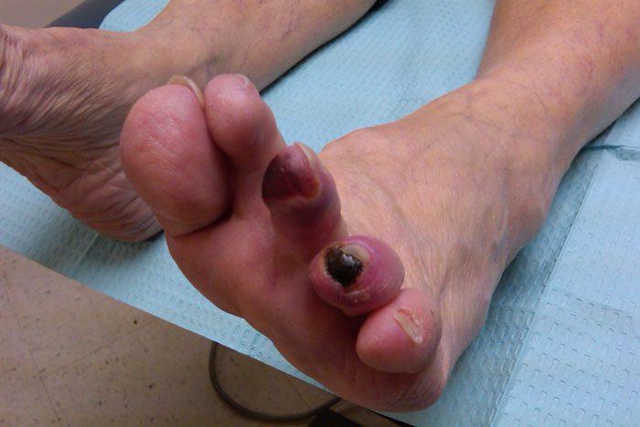 زخم های ایسکمیک