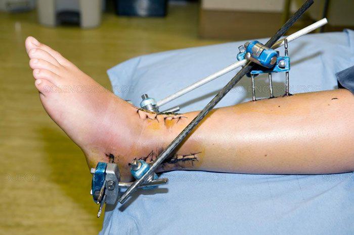 زخم های جراحی