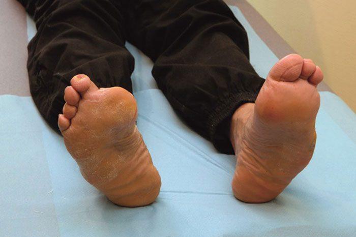 زخم پای دیابتی می تواند سبب مرگ شود