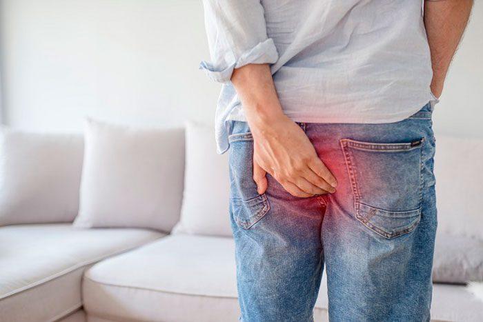 روش های خانگی برای درمان زخم مقعد و شقاق