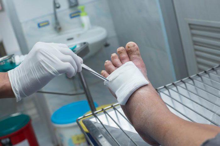 مراقبت از زخم در بیماران دیابتی