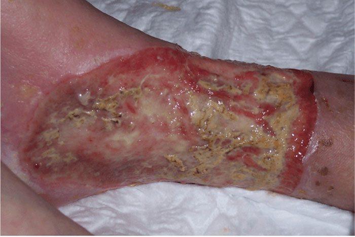درمان زخم چرکی