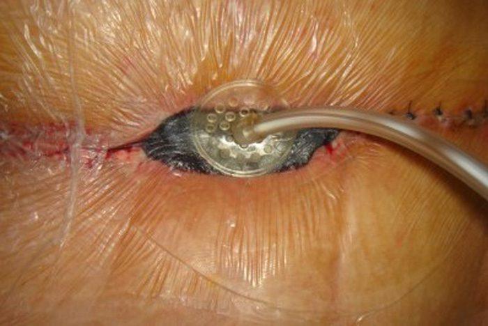 وکیوم تراپی زخم