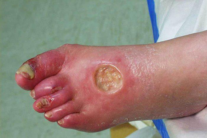 درمان زخم عفونی