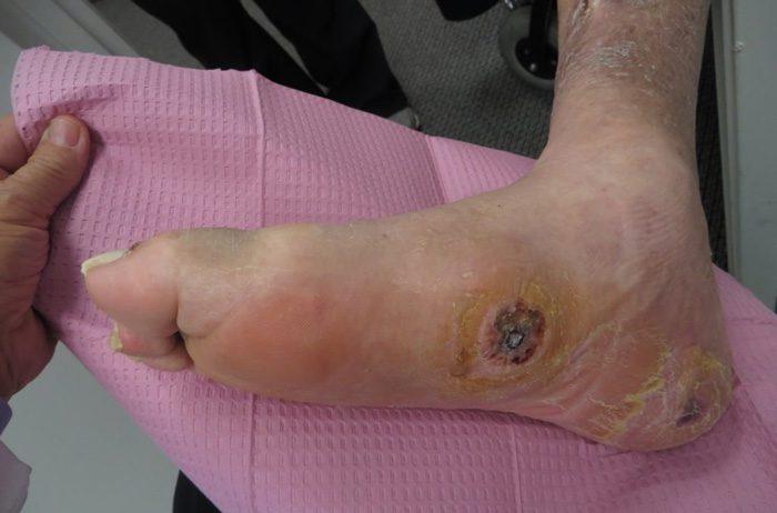 چرا زخم پای دیابتی باید درمان شود؟