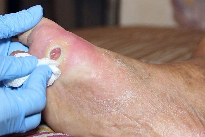 روش های درمان زخم در بیماران دیابتی