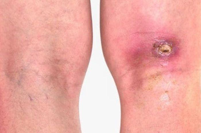 روش های درمان انواع زخم باز