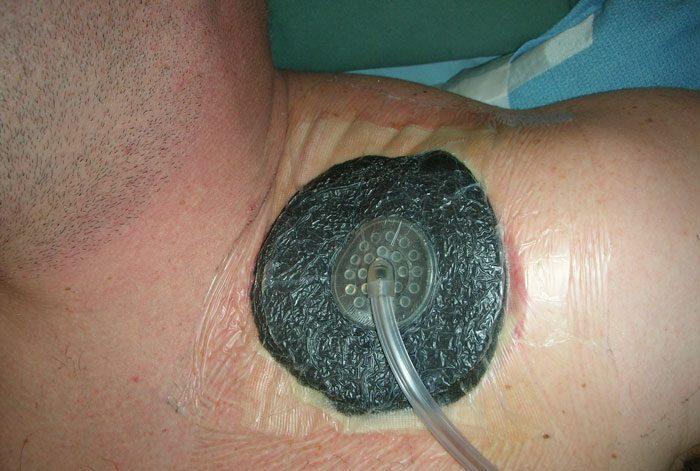 مزایای وکیوم تراپی در درمان زخم ها