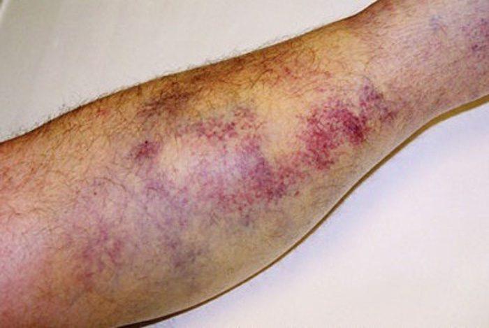 زخم بسته چیست و چگونه درمان می شود؟
