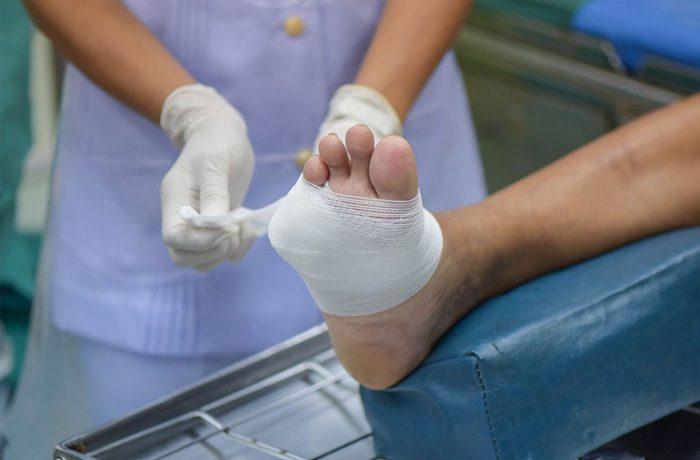 روش های درمان زخم در بیماران مبتلا به دیابت