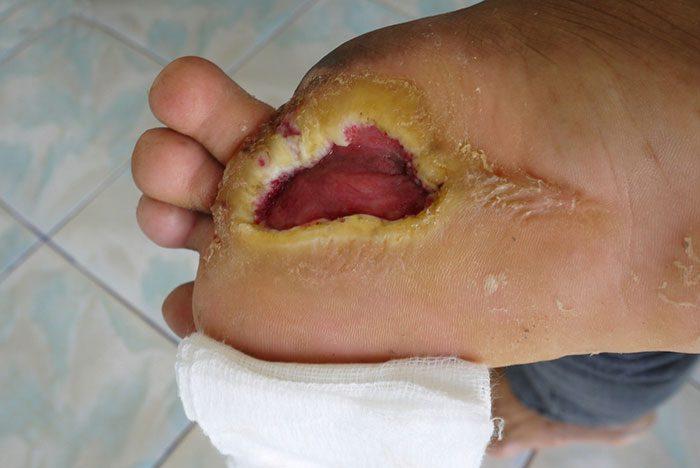 همه چیز درباره زخم پای دیابتی