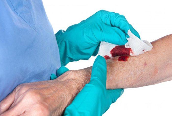 اصول مراقبت از زخم