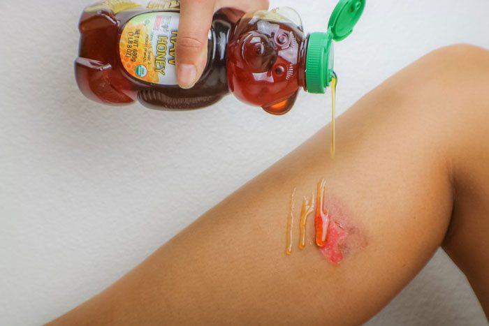 درمان زخم عفونی با عسل