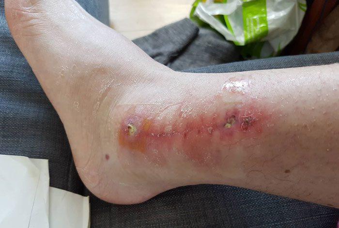 نشانه های زخم آلوده چیست؟