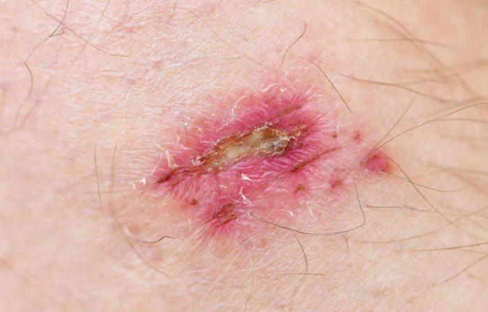 چقدر از ریسک های مربوط به زخم های عفونی خبر دارید؟