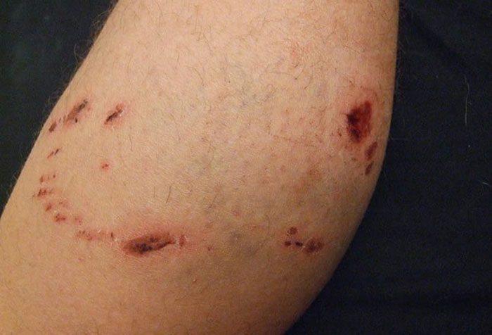 صدمات ناشی از زخم های حیوانات؛ چگونه با آنها روبه رو شویم؟